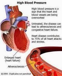 Obat Tekanan Darah Tinggi