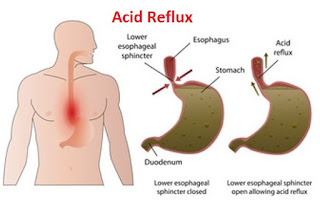 Natural remedy for acid reflux