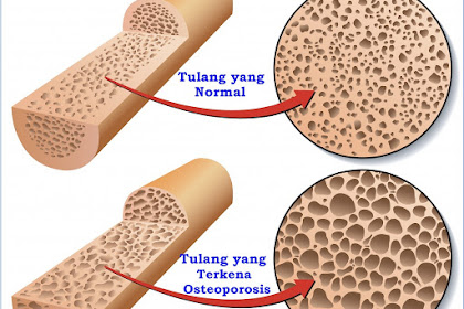 4 Hal yang Bisa Mempercepat Pengeroposan Tulang