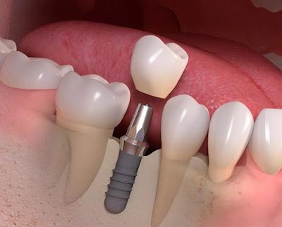 Cấy răng Implant như thế nào ?
