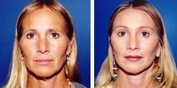 Yoga Facial Exercises For Rejuvenation Of The Neck And Face: Use