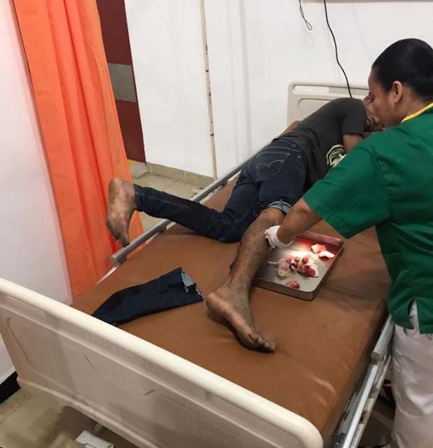 Tersangka pencuri yang ditembak polisi saat di rumah sakit.