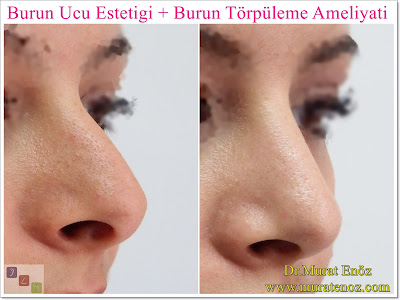 Nasal aesthetic surgery without breaking the bone, Rhinoplasty without breaking the bone, Rhinoplasty without breaking the nasal bones, Nose job without breaking bone, Rhinoplasty In Istanbul, Rhinoplasty In Turkey,