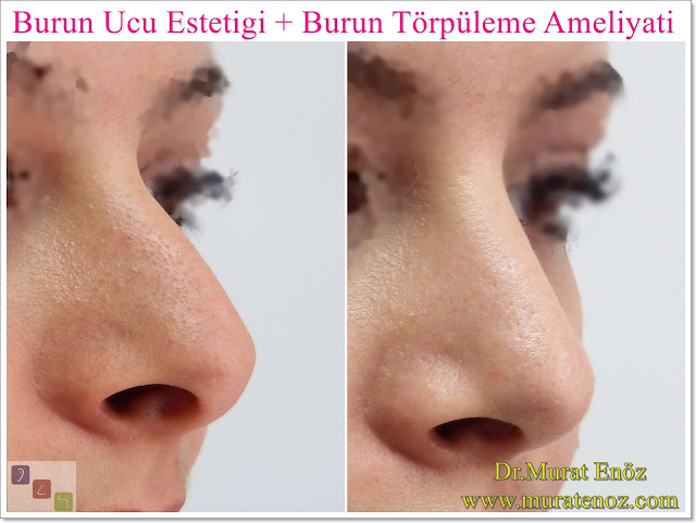 Nasal aesthetic surgery without breaking the bone - Rhinoplasty without breaking the bone - Rhinoplasty without breaking the nasal bones - Nose job without breaking bone