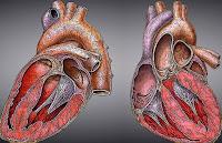 gejala jantung bengkak kardiomegali