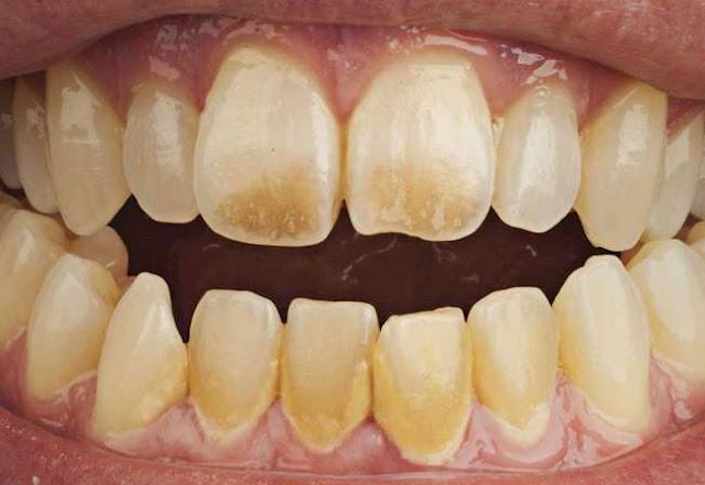 التخلص من صفرة الأسنان بالأعشاب