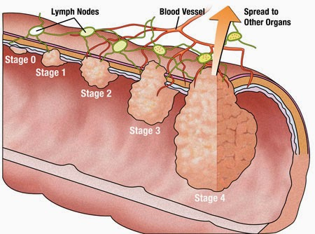 Things You Need To Know About Colorectal Surgery You Ve Been Diagnosed With Colon Cancer What S Next