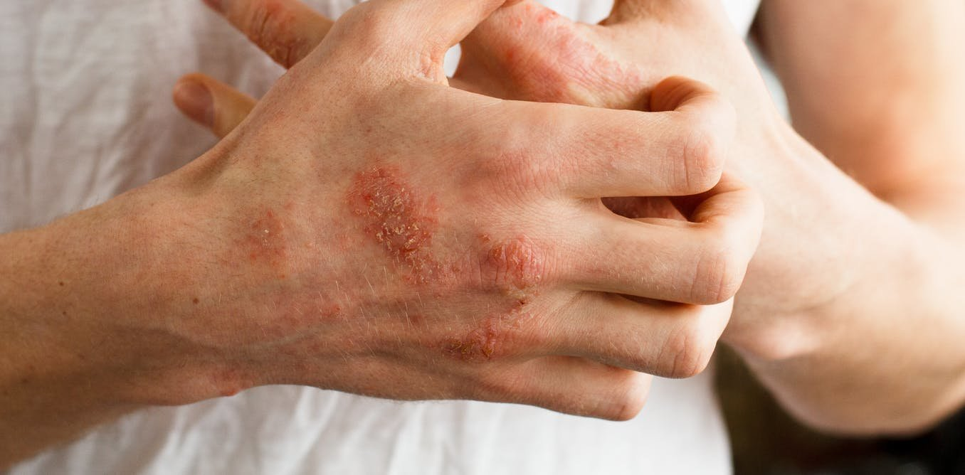 1 guidance atopic eczema in under 12s diagnosis and - 1140×620