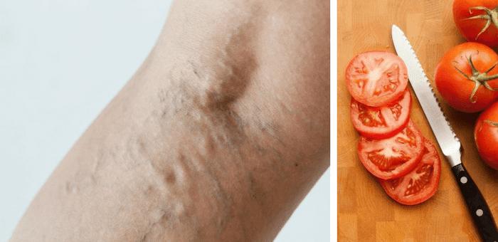 remedio de tomate para combatir las varices