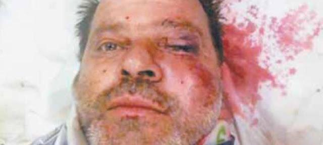 ΠΑΝΙΚΟΣ ΣΤΗΝ ΖΑΚΥΝΘΟ - Σαπισε στο ξυλο υπαλληλο της ΔΕΗ που πηγε να του κοψει το ρευμα