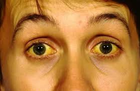 Jaundice may have liver cancer?