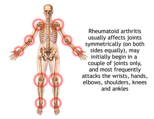 Rheumatoidarthritis usually affect joints symmetrically
