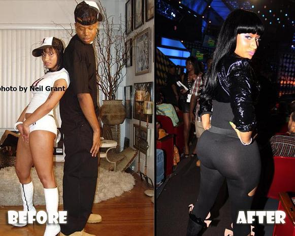 Nicki Minaj Plastic Surgery Nicki Minaj Plastic Surgery