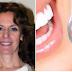Ανακάλυψη σταθμός στην Ιατρική: Η Ελληνίδα οδοντίατρος Αμαλία Αγγελή εφηύρε ουσία που αναπλάθει τα δόντια χωρίς σφράγισμα!!!