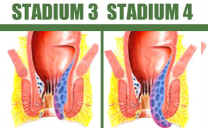 Obat Herbal Sembuhkan Wasir Stadium 3 dan Stadium 4