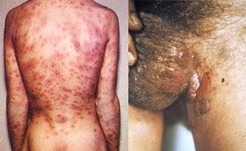 Gejala Penyakit Sipilis Laki-Laki