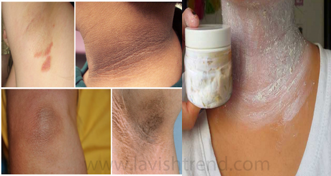 Remove Dirt And Darkness From Your Neck In Just 20 Minutes