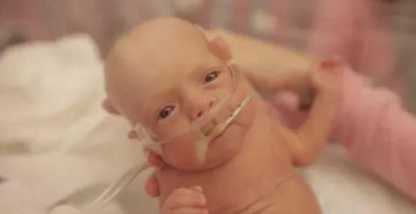 Γεννήθηκε στους 5,5 μήνες. Δείτε πώς είναι μετά από ένα χρόνο και δεν θα πιστεύετε στα μάτια σας!