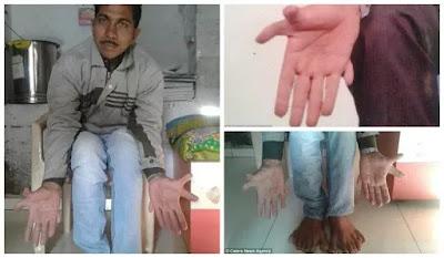 أصابع، عالم العجائب