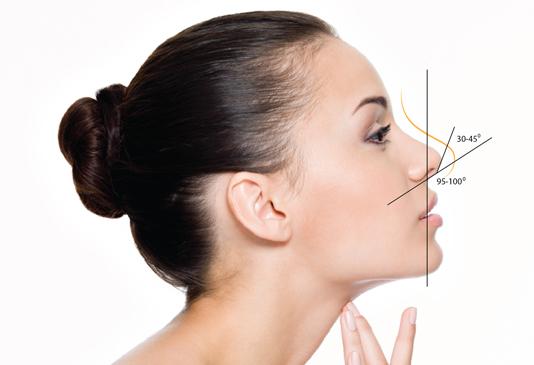 Các phương pháp nâng cao sống mũi nào chất lượng nhất hiện nay