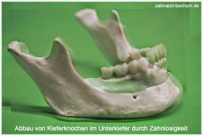 kein kieferknochen mehr mini implantate