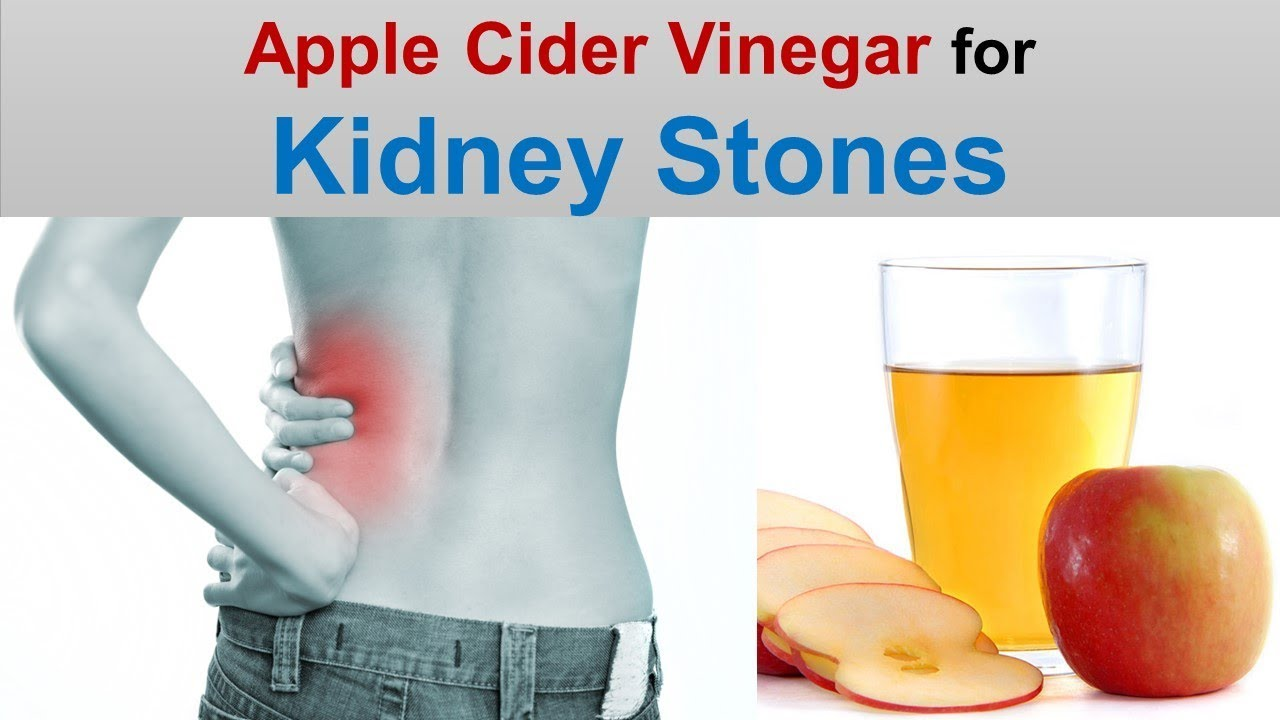 Mix A Lemon, Olive Oil And Vinegar To Dissolve Kidney Stones