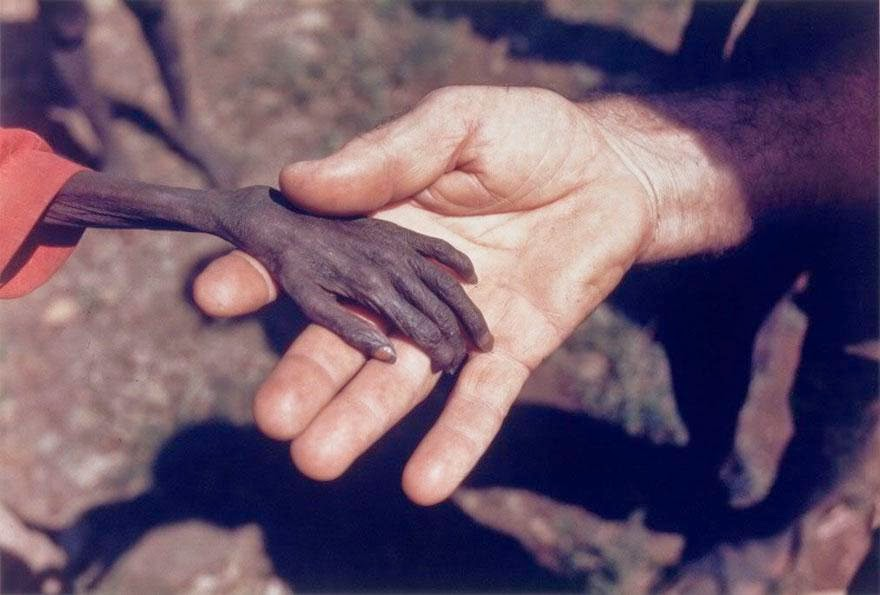 30 of the most powerful images ever - Starving boy and missionary