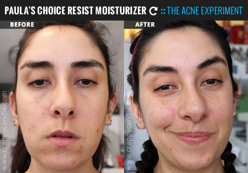 Paula's Choice RESIST Moisturizer (New Formula) Before & After :: The Acne Experiment