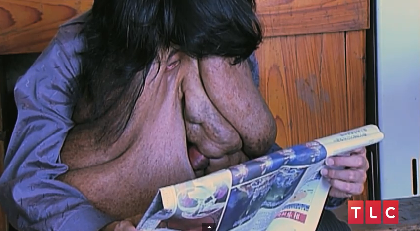 China's Elephant Man. Watch The Video of His Heartbreaking Story ...