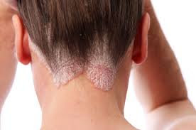 Psoriasis is a skin disease that  causes scaling and inflammation