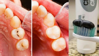 Pasta Gigi Ini Buat Gigi Putih dalam Tiga Menit