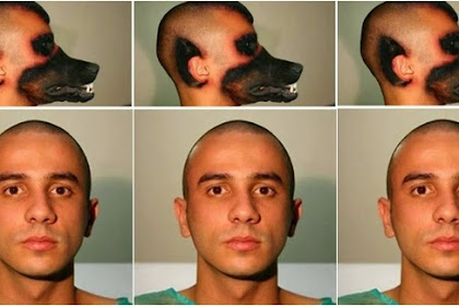 Pria Yang Melaksanakan Operasi Plastik Supaya Berwajah Anjing