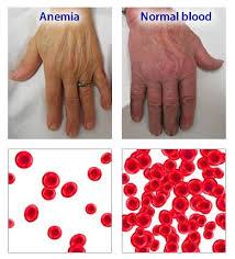 Pengobatan Untuk Sembuhkan Anemia Aplastik