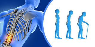 Aprueban medicamentos que produce hueso para la Osteoporosis