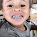What Do you think about Blac Chyna's Son's teeth?