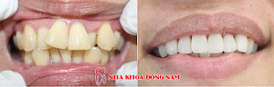 bọc răng sứ có nguy hiểm không -5