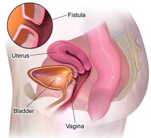 Colovesical fistula - Symptoms, Diagnosis, Surgery, Recovery time