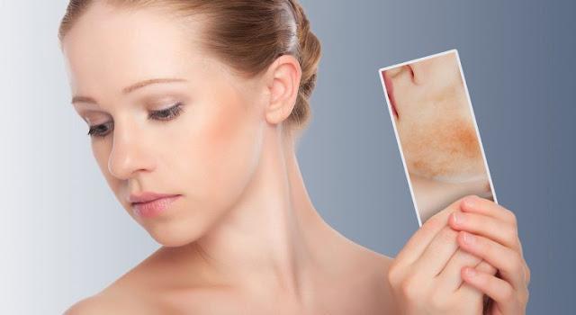 Tratamiento_y_cuidados_dermatitis_atopica