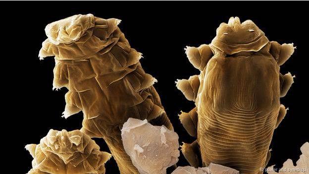 demodex folliculorum toma de muestra