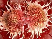 Cara Mengobati Kanker Kulit Secara Alami