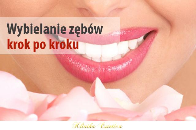 Wybielanie zębów krok po kroku, czyli wszystko o metodzie White & Smile