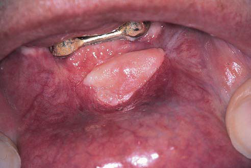 Healthy Ranula White Lesions Of Oral Mucosa