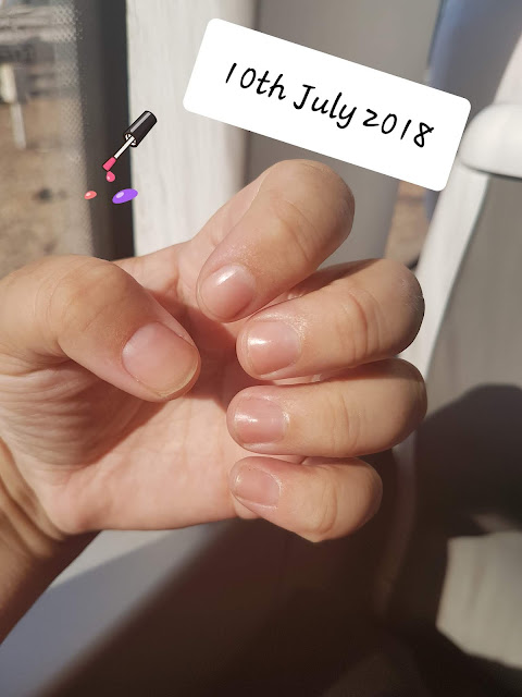 Photo week 1 - Growing my Nails 2018 20180710
