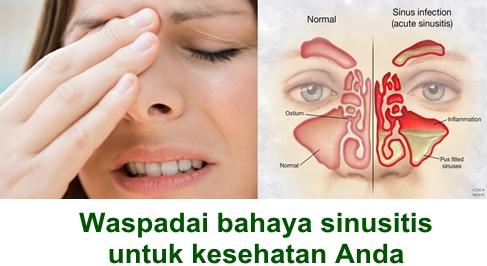 Obat Herbal Sembuhkan Sinusitis Dengan Cepat