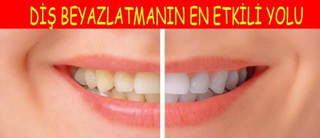 diş beyazlaştırma yolları