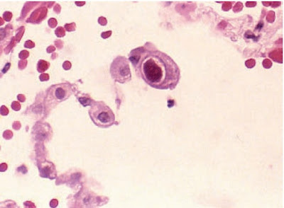 Active cytomegalovirus infection of lung in patient with acquired immune deficiency syndrome