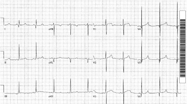 EKG Kardiomiopati Hipertrofik
