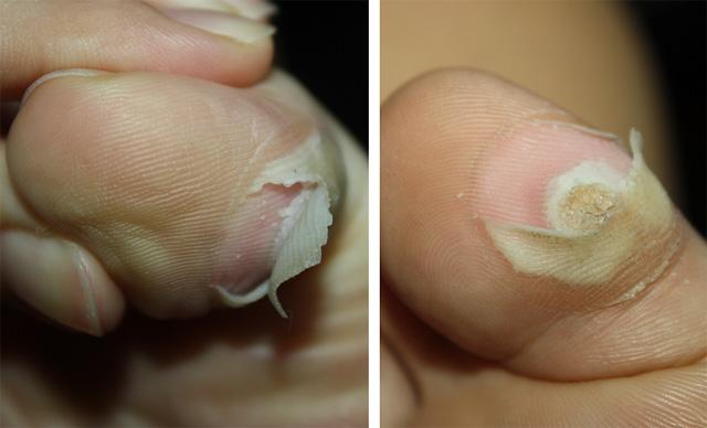 Hpv skin layer. Wart on face skin cancer, Hpv skin peeling