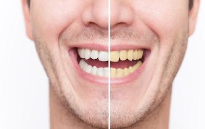 Cara Memutihkan Gigi Secara Alami Dengan Benar