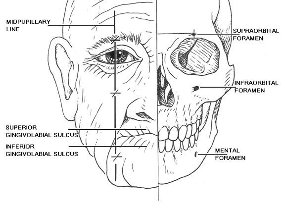 PG Medic: Facial Nerve Block